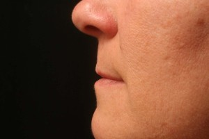 03 Juvederm Before