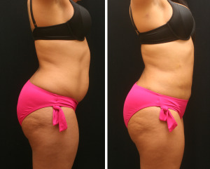 Germantown Aesthetics Lipo Before and After Memphis