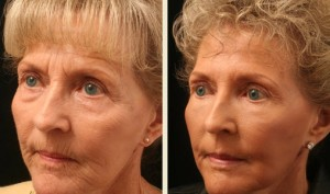Nonsurgical Facelift in Memphis