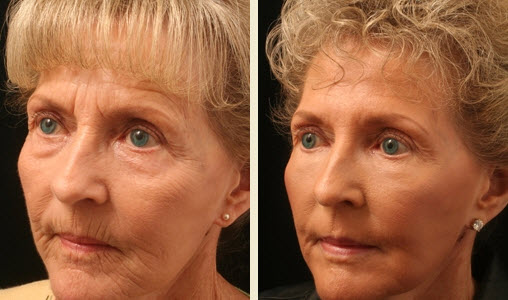 Non Surgical Facelift In Memphis Tn Germantown Aesthetics