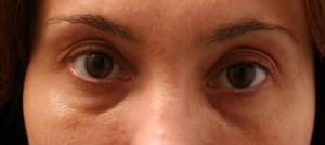 04.0 Artefill before (Tear Troughs - Under Eye Circles)