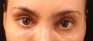 04.1 Artefill after (Tear Troughs - Under Eye Circles)