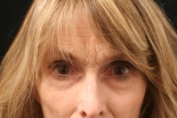 Nonsurgical Facelift Patient 27988 Before Photo # 1