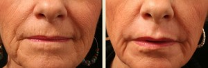 Fractional CO2 Skin Resurfacing in Memphis