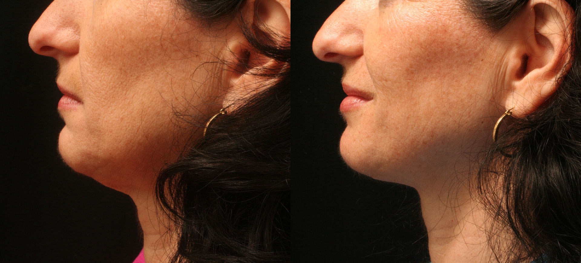 Neck microliposuction