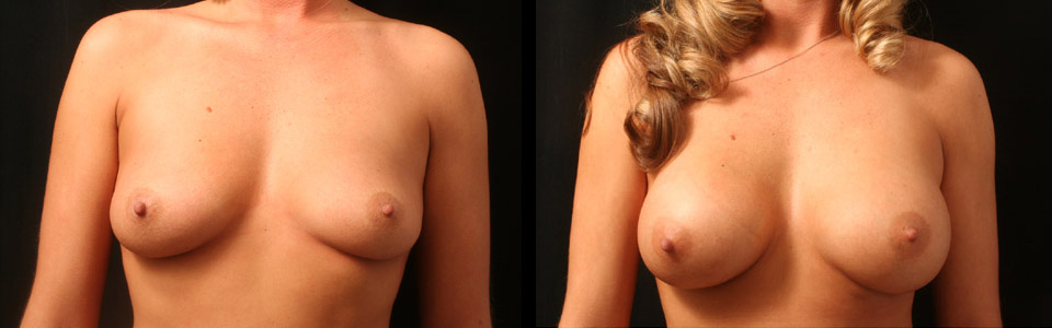 Transumbilical Breast Augmentation