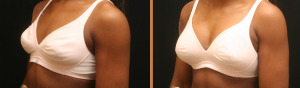 Breast reduction memphis tn