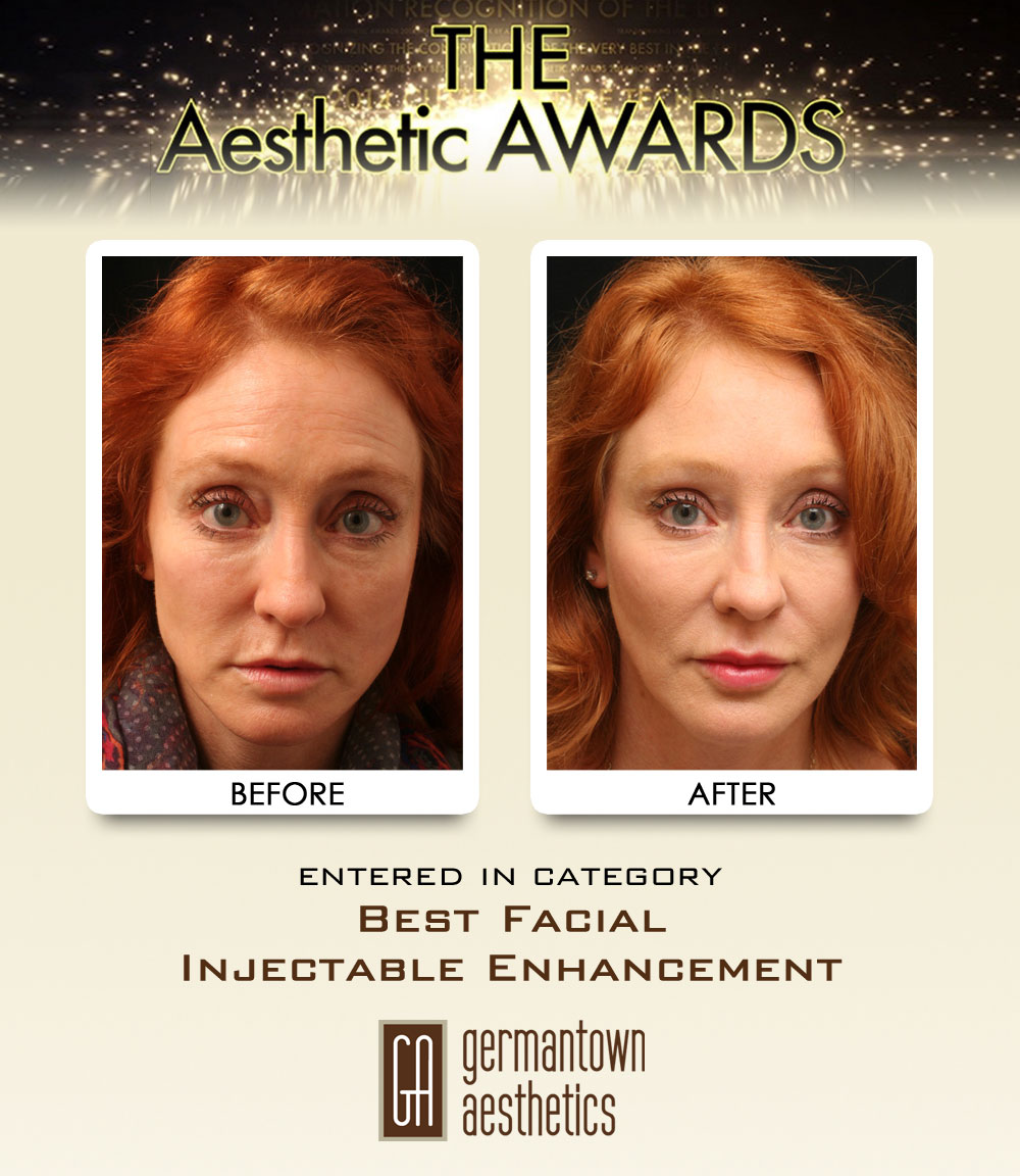 03-Best-Facial-Injectable-Enhancement