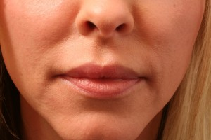 01 Juvederm Before