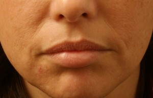 04 Juvederm Before