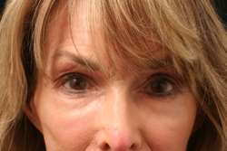 Nonsurgical Facelift Patient 27988 After Photo # 2