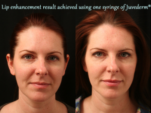 Dermal Filler Juvederm Result Germantown Aesthetics-resized-600
