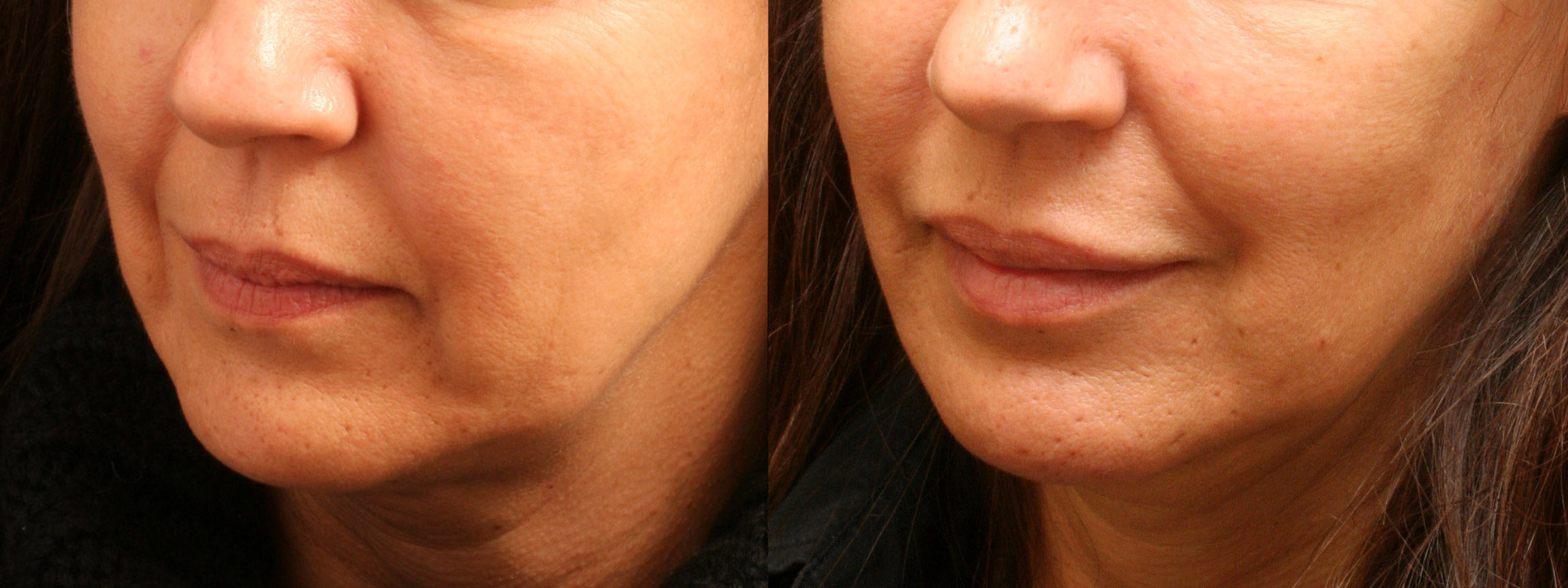 Radiesse, Juvederm, and Artefill