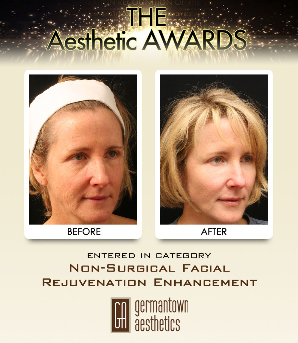 20-Non-Surgical-Facial-Rejuvenation-Enhancement